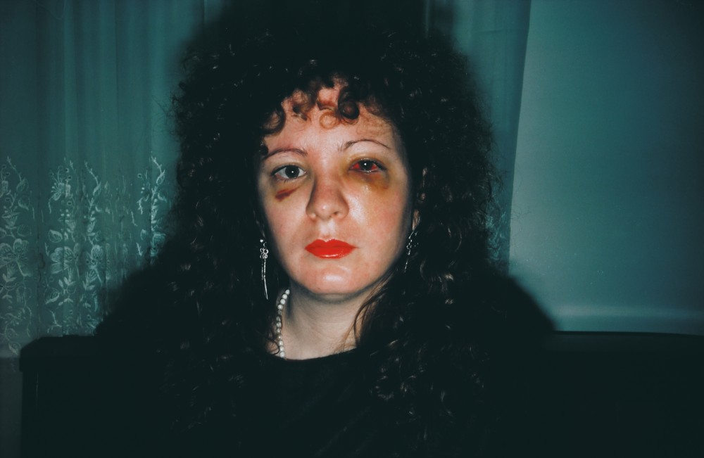 Nan Goldin - Nan one month after being battered, 1984<small>© Westlicht / Nan Goldin</small>